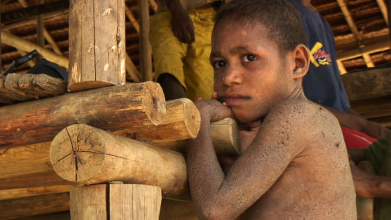 Boy at Pai Pai: some of the most tragic victims of the logging crisis in Papua New Guinea are the next generation. Photo by: David Fedele.
